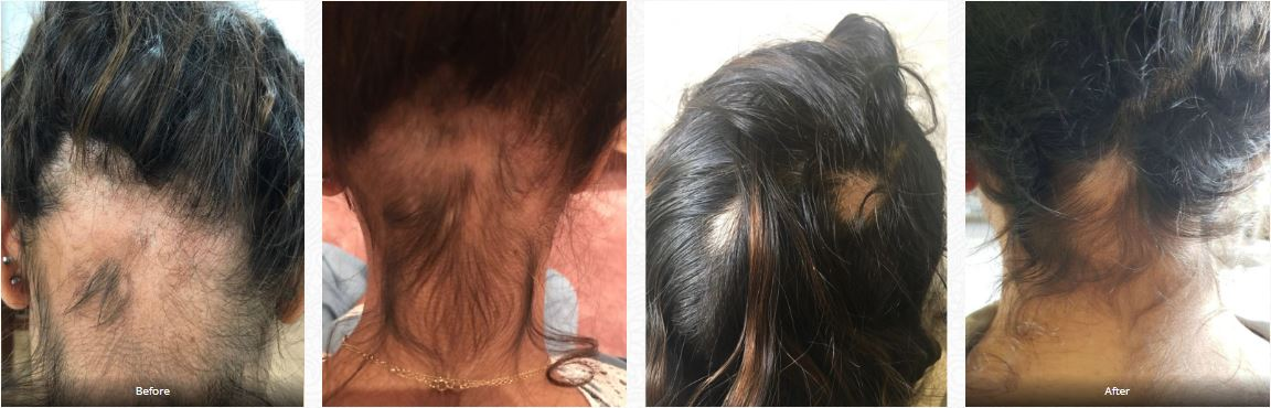 Alopecia case treated at London Homeopathy